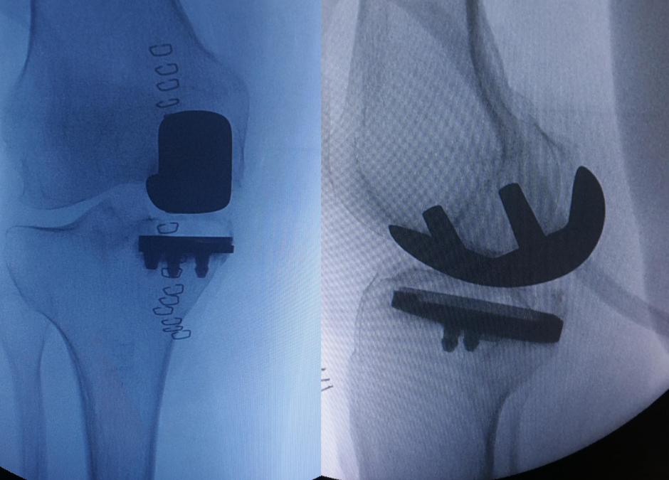 protesi mono compartimentale Di Feo Ortopedico