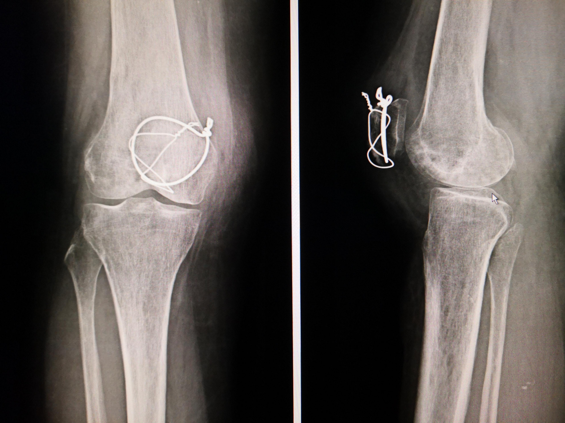 lesione rotula
