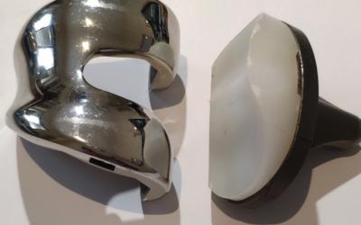 La qualità nelle protesi, ne esistono di migliori?
